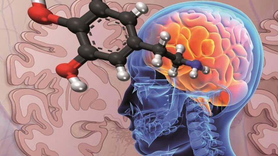 Parkinson y la dopamina