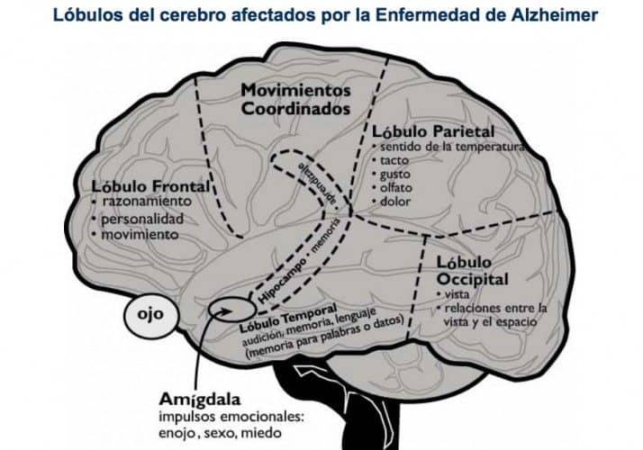 cerebro afectado Alzheimer