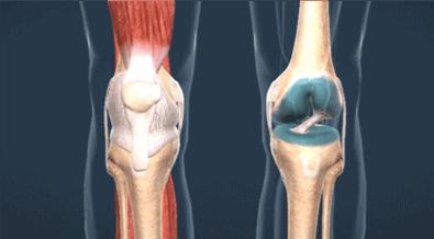 Imagen 2: Imagen anatómica del LCA, lesión más frecuente durante la ovulación.