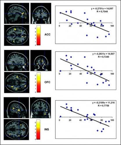 Endorfinas en el cerebro