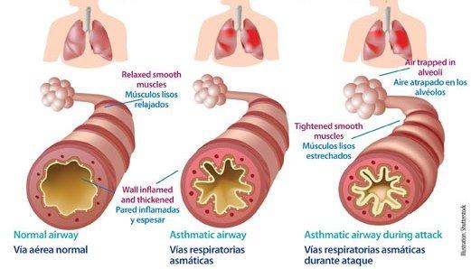 Asma y actividad física