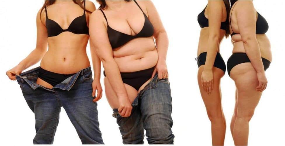 cómo tratar la obesidad