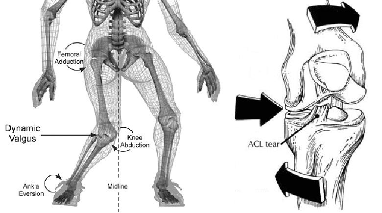 LCA mecanismo de lesion