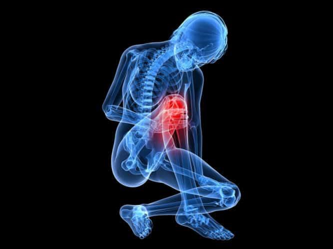 PEP Program. Prevención de lesiones en el LCA 1
