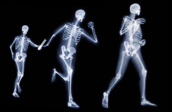 Osteoporosis y Actividad Física