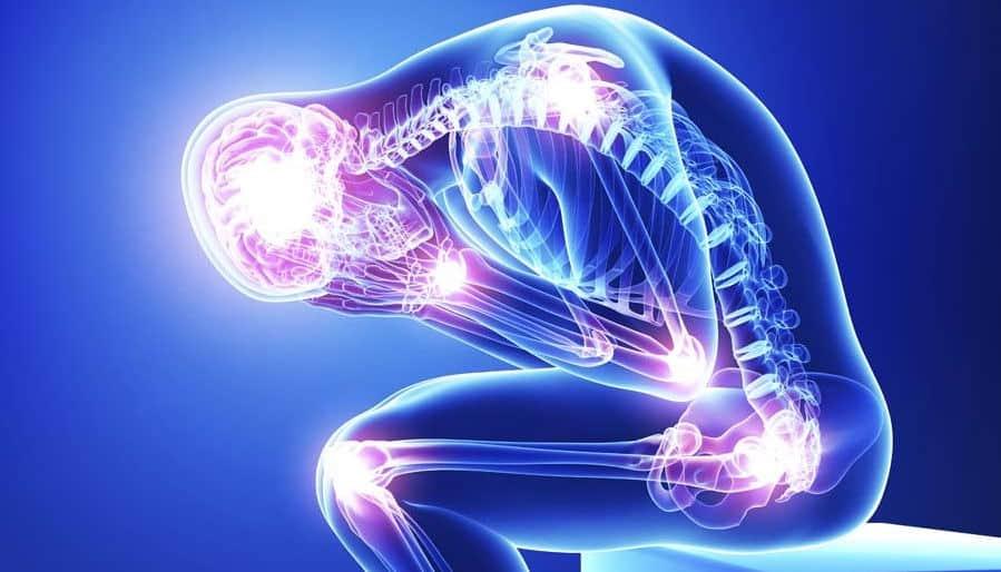Puntos de dolor en la fibromialgia