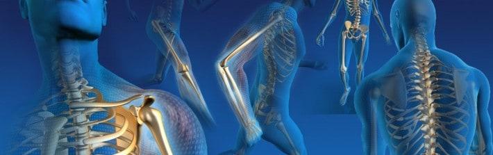 Artrosis en diferentes articulaciones