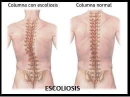 imagen de escoliosis