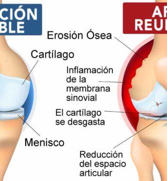 Artritis reumatoide y articulacion