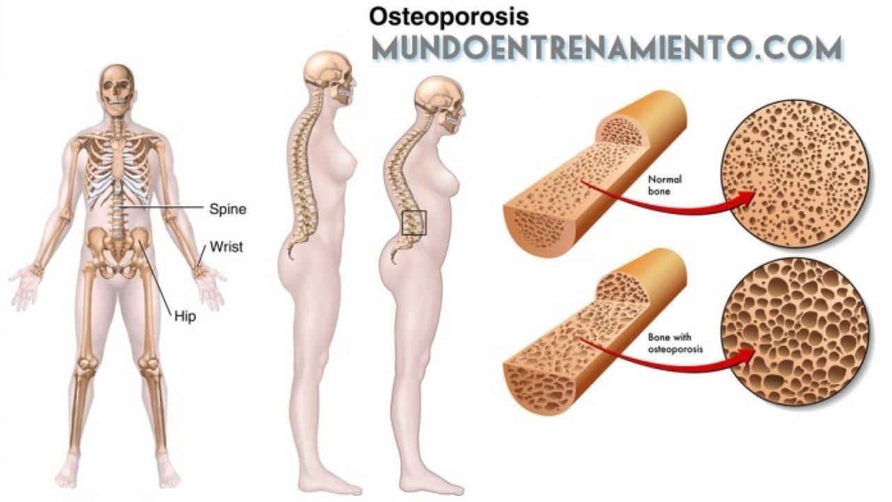 sintomas de la enfermedad osteoporosis