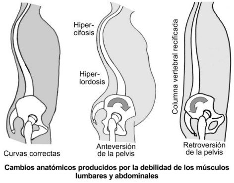 anteversion-retroversion-pelvis