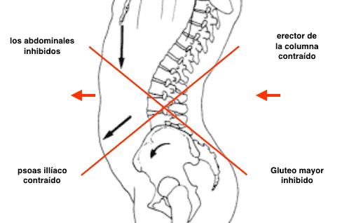 sindrome-cruzado-inferior
