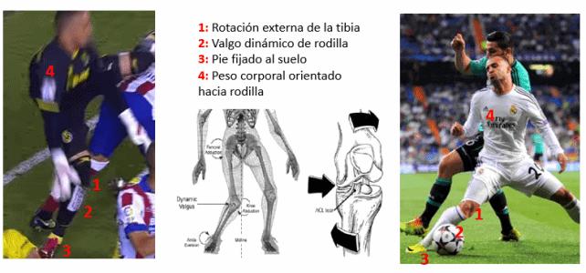 Ligamento cruzado anterior en el fútbol