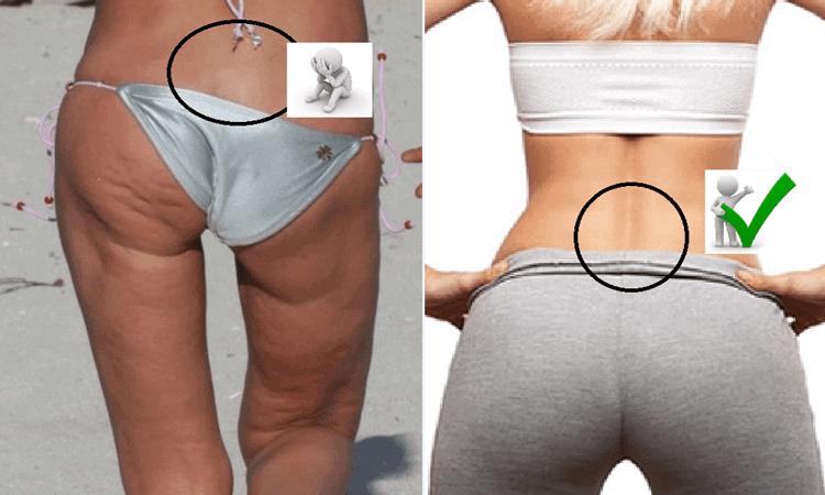 Erectores espinales. A la izquierda, práctica inexistencia del desarrollo de los erectores espinales inferiores (además de glúteos mayor y medio) y a la derecha, visible desarrollo de ambos.