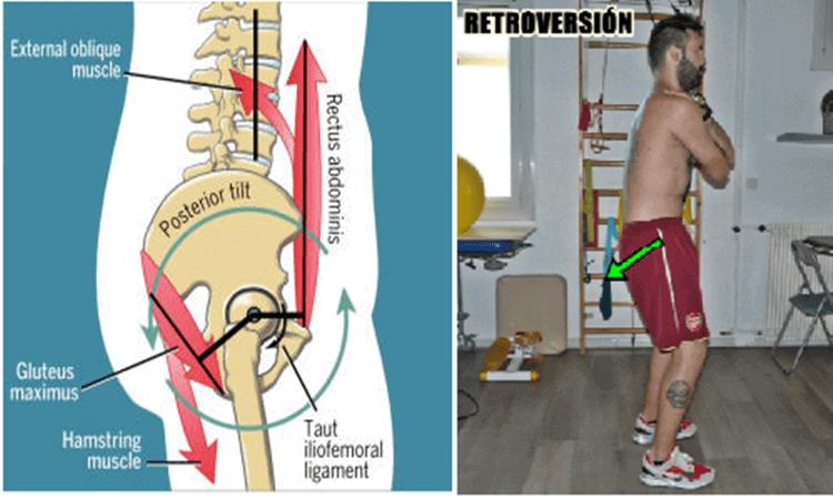 Pelvic Tilt o retroversion pélvica (7).