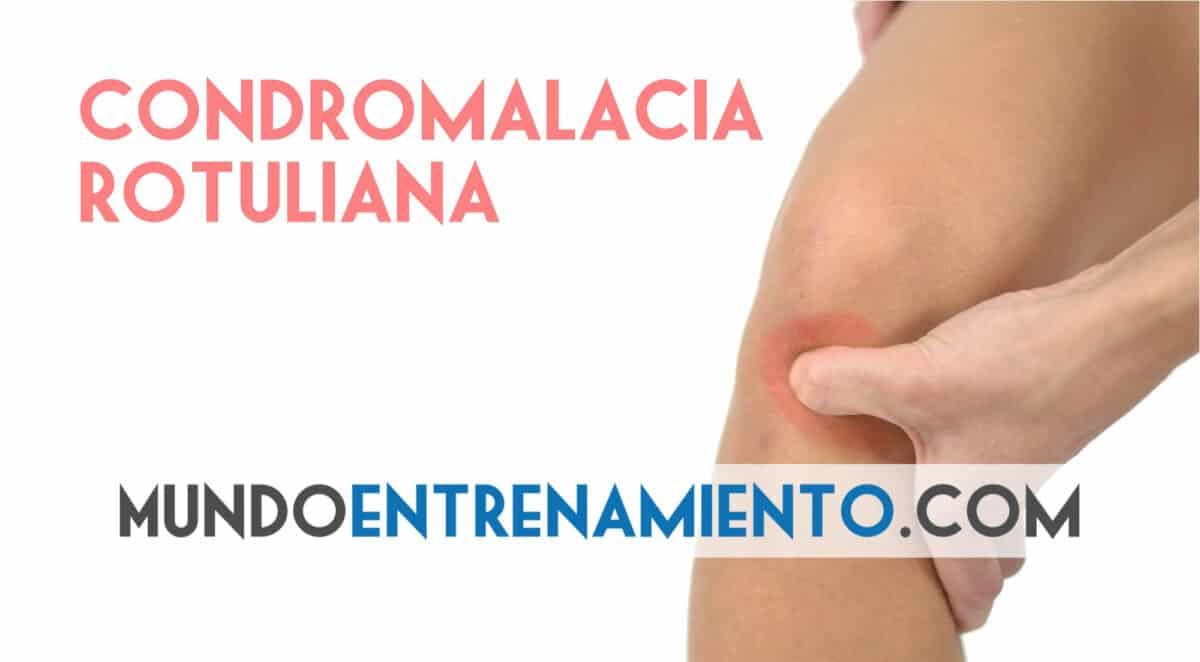 condromalacia rotuliana