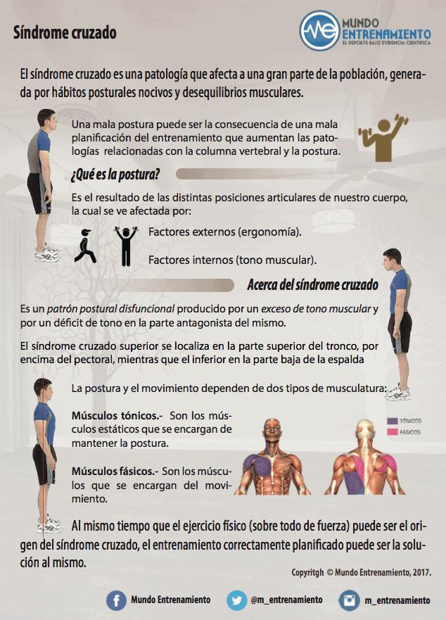 infografia del síndrome cruzado