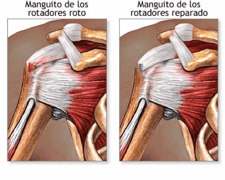 Figura 3. Lesión y recuperación del manguito rotador.