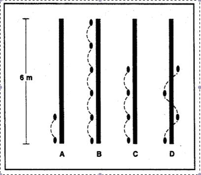 imagen 3. Pruebas funcionales para la lesión de ACL