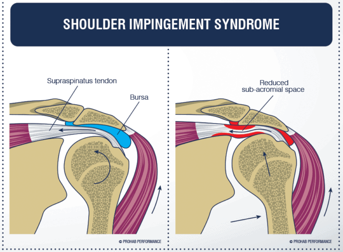 Síndrome impingement