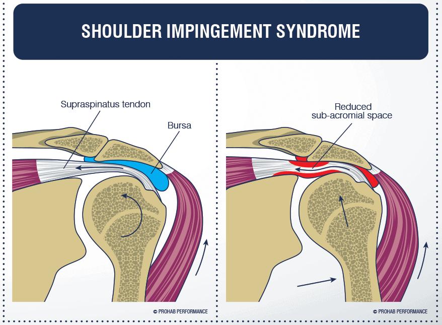 Pinzamiento subacromial en el hombro | Mundo Entrenamiento