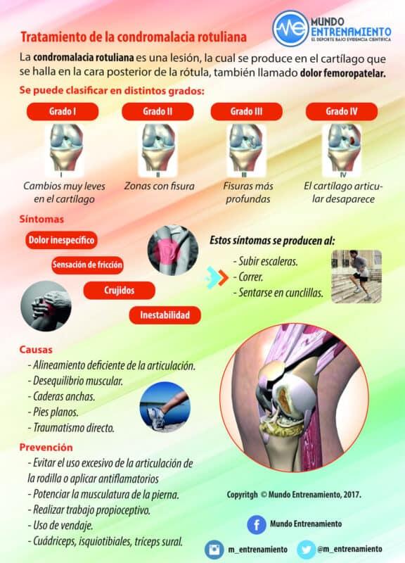 tratamiento de la condromalacia rotuliana