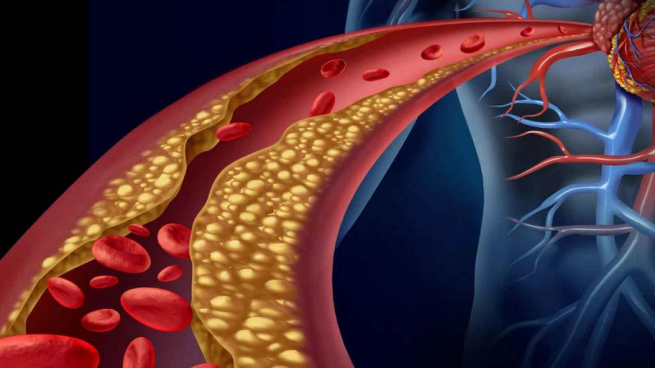 Hipertensión ejercicio intolerancia hipotiroidismo