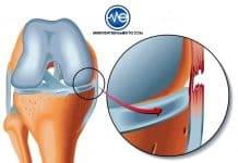 Ligamento Lateral Interno de la rodilla