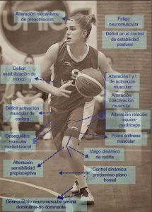 Factores de riesgo neuromuscular