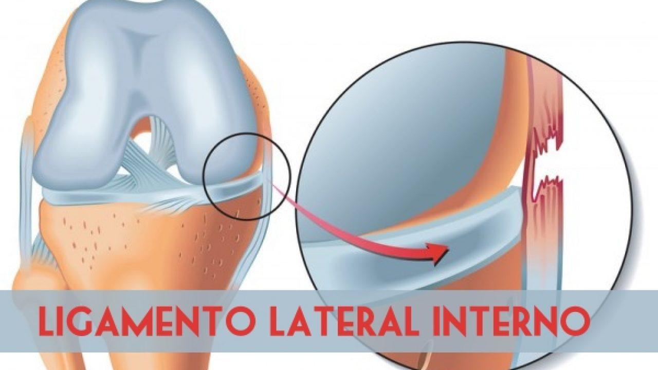 rotura de ligamento lateral interno recuperacion