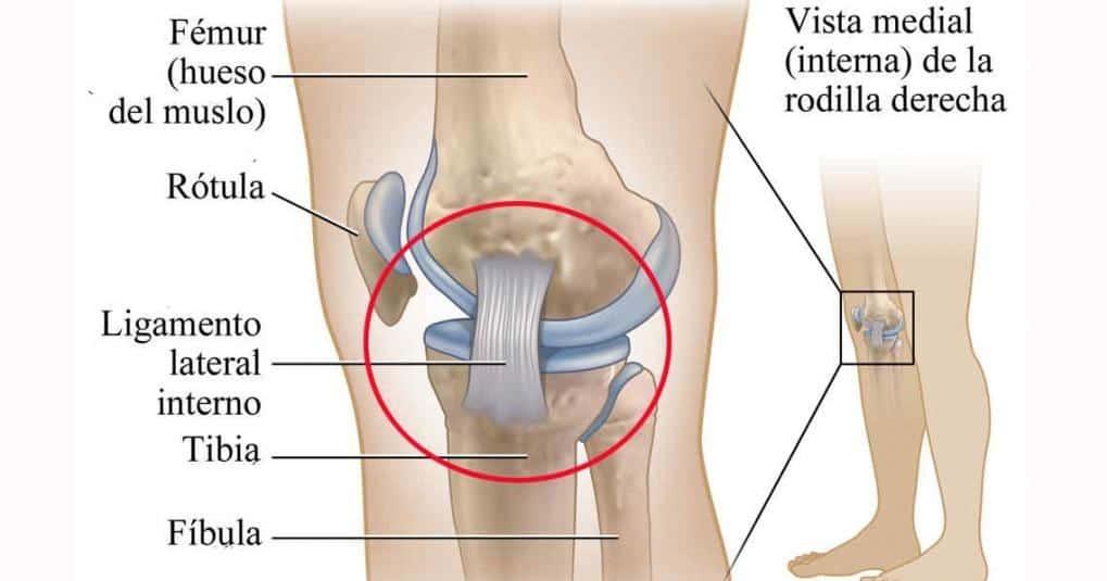 Lesión en el Ligamento Lateral Interno de la Rodilla