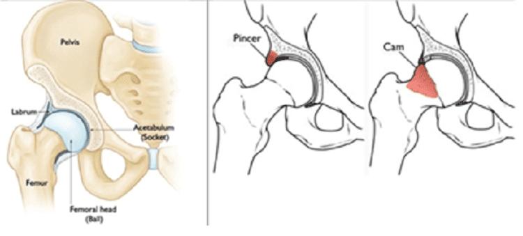 A la derecha, la articulación coxo-femoral, con las distintas estructuras que la forman. A la izquierda, podemos ver los 2 tipos de conflictos que se pueden producir en la cadera, Tipo Cam o tipo Pincer.