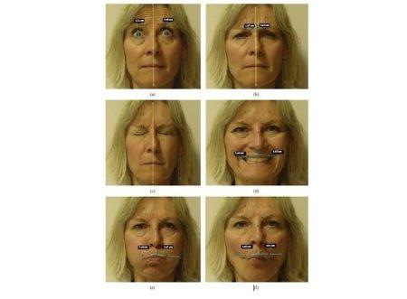Movimiento facial