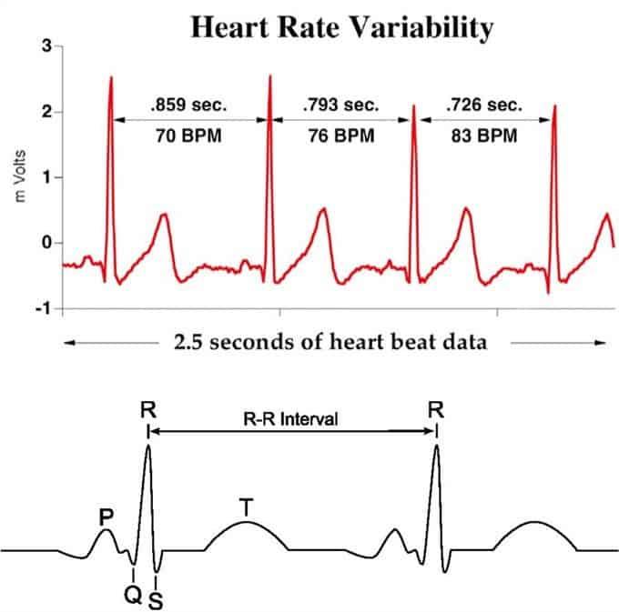 Figura 2. Variabilidad cardíaca