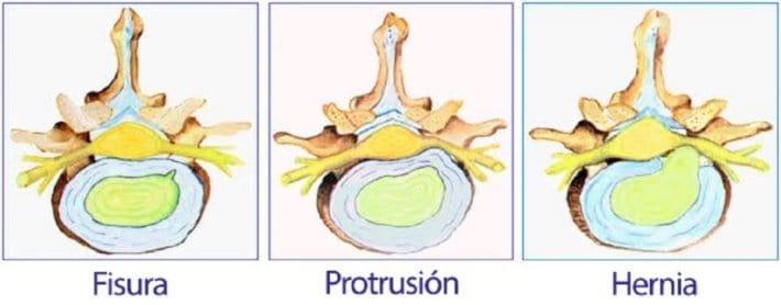ejemplo protusión en una hernia de disco en la zona lumbar
