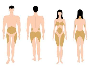 Lugares en donde más suele estar la grasa localizada.