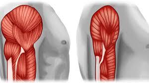 Perdida de masa muscular por un periodo de inactividad.
