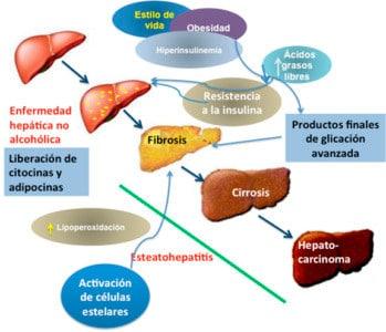Factores que influyen en el padecimiento de hígado graso no alcohólico.