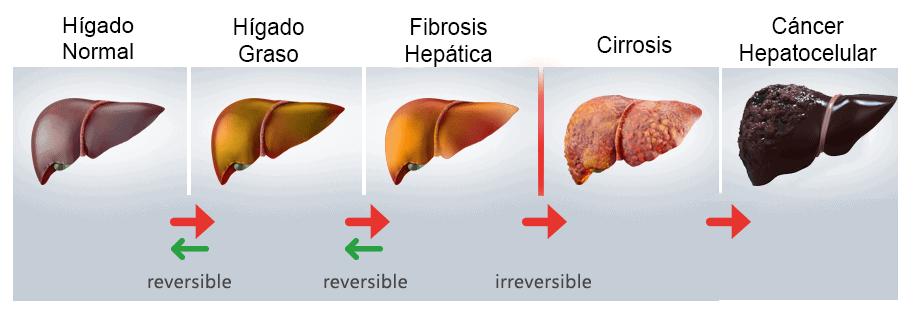 estados característicos de un hígado graso no alcohólico.