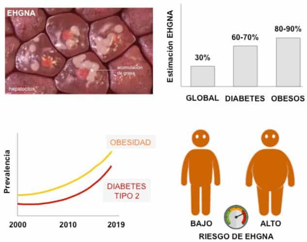 Obesidad y síndrome metabólico con mayor predisposición a hígado graso no alcohólico.