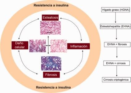 La resistencia a la insulina como un factor de importancia en personas con hígado graso
