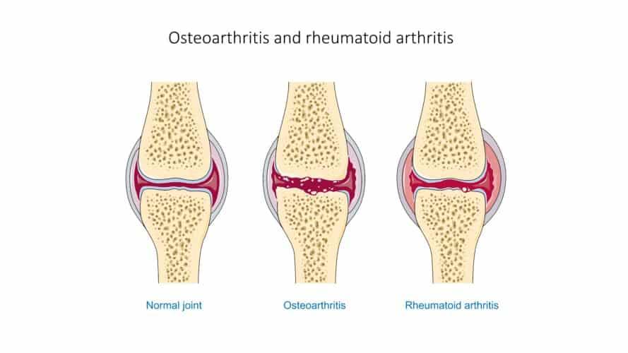 Articulación sana, con artrosis y con artritis