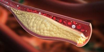 la dieta para bajar el colesterol no es limitante en grasas cis